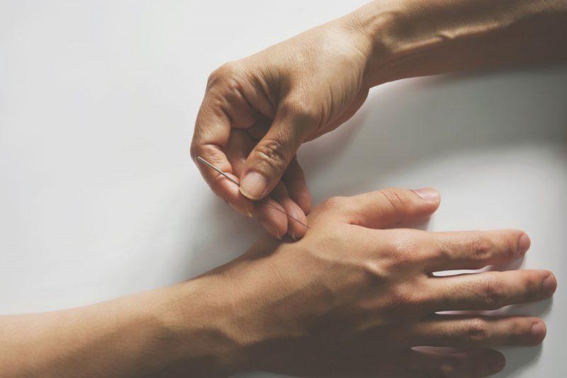 דיקור סיני בבאר שבע: הרפואה הסינית כשיטת ריפוי לגוף ולנפש. צילום: iambasic_studio, Shutterstock