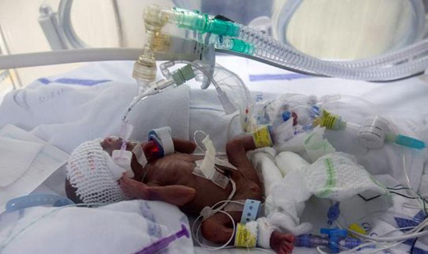 תינוק מאושפז. צילום: אוליבייה פיטוסי. למצולם אין קשר לכתבה